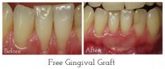 Gum Grafts For Gum Treatment