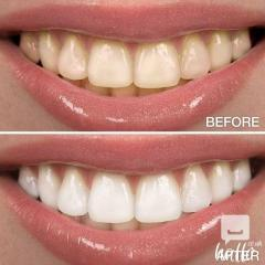 Safe And Effective Way To Whiten Teeth