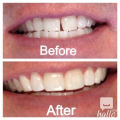 Better Bonding And Filling Materials For Teeth