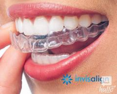 Invisible Braces For Teeth Straightening