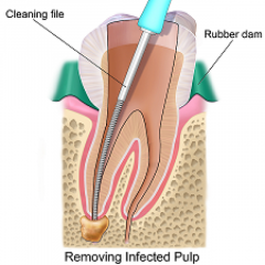 Root Canal Treatment With Budget Friendly Packag