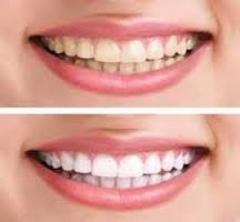 Cosmetic And Aesthetic Dentistry Available With